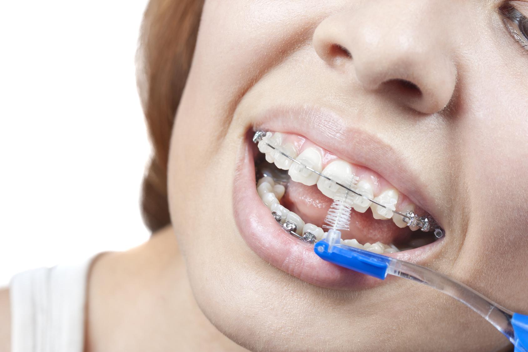 Orthodontics | Dr. Anthony Chan | Yaletown dentist